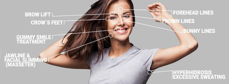 Anti Wrinkle Injections locations