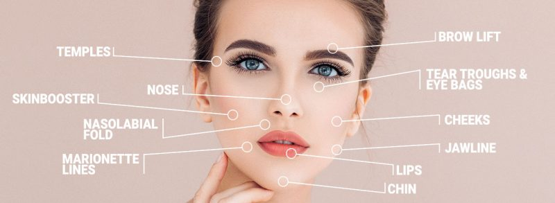 Dermal Fillers locations