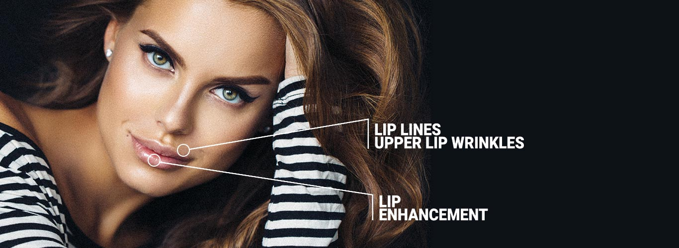 Lip Fillers locations