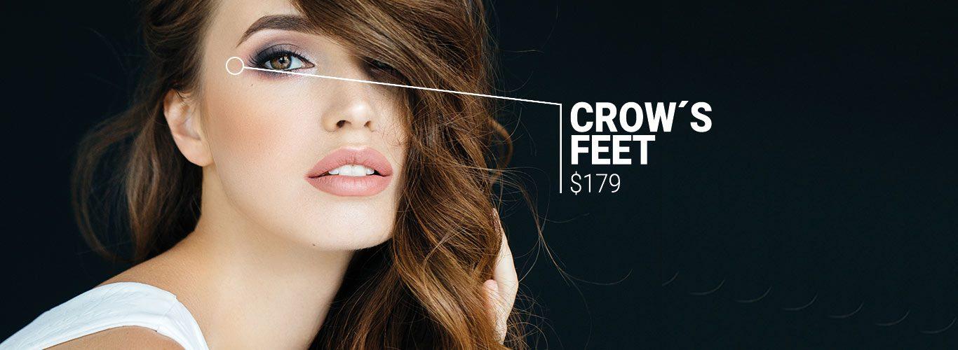 Crows Feet $179