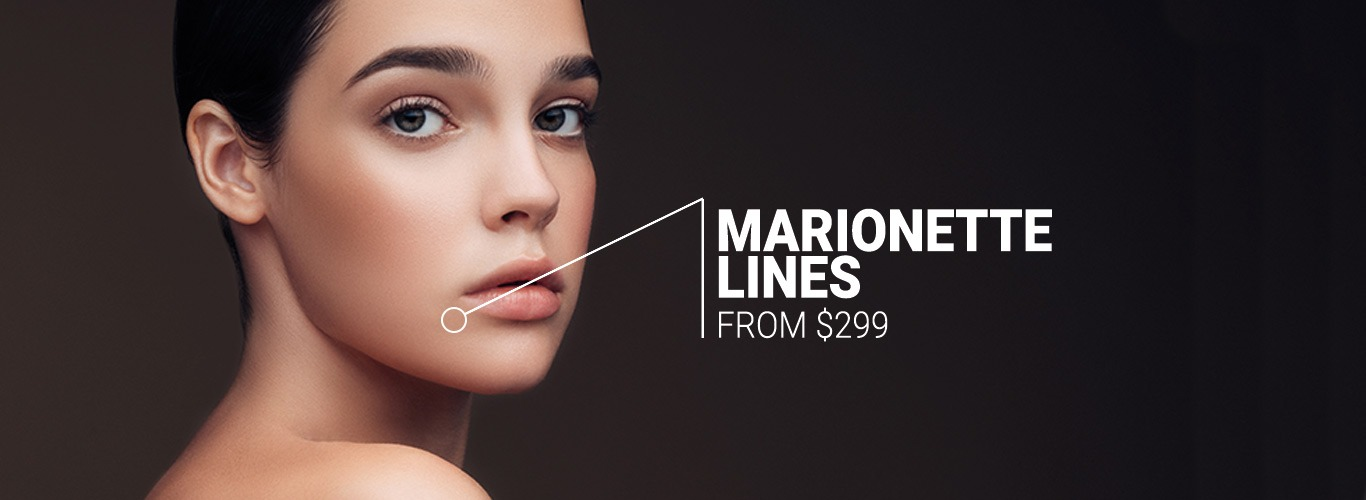 marionette lines $299