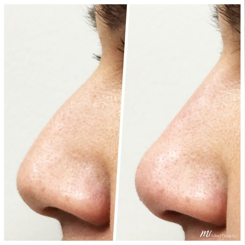 nose correction m1 med beauty