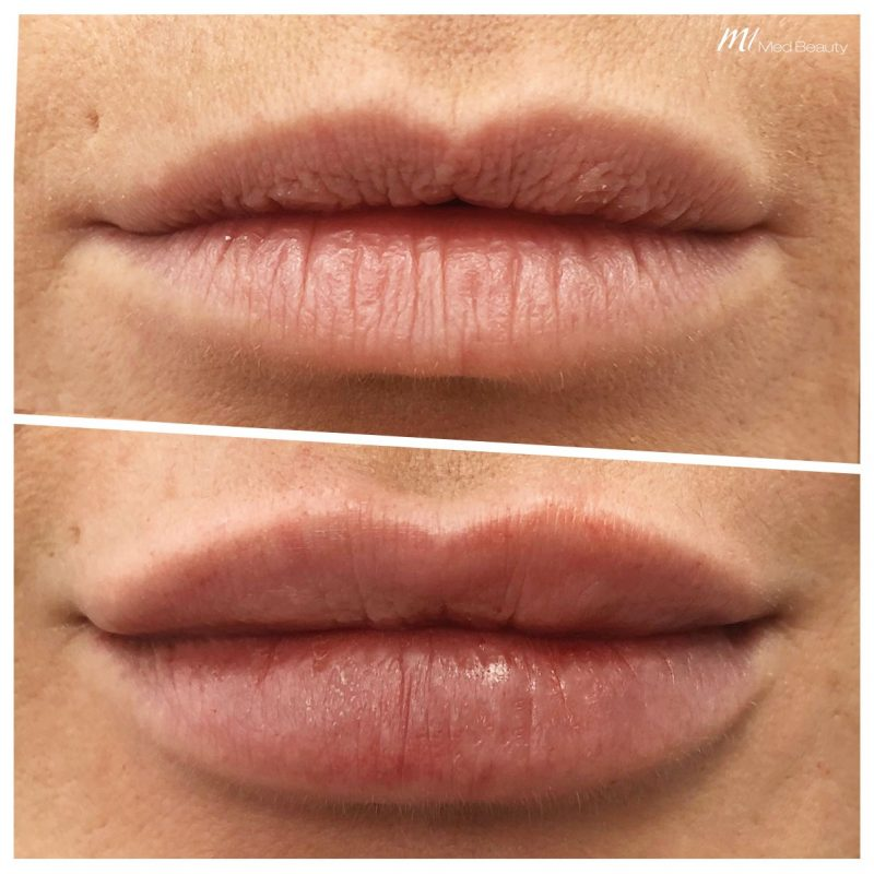 Lip-enhancement-fillers at M1 Med Beauty