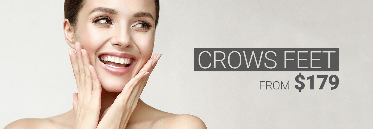 crows feet m1 med beauty