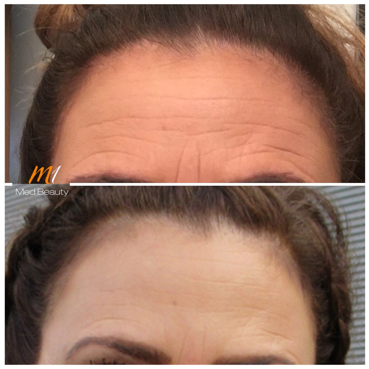 Forehead lines wrinkle treatment at M1 Med Beauty