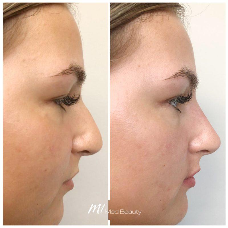 Nose filler at M1 Med Beauty
