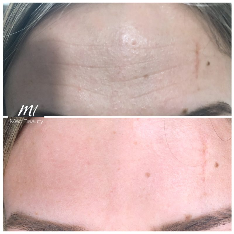 Forehead Lines Before + After