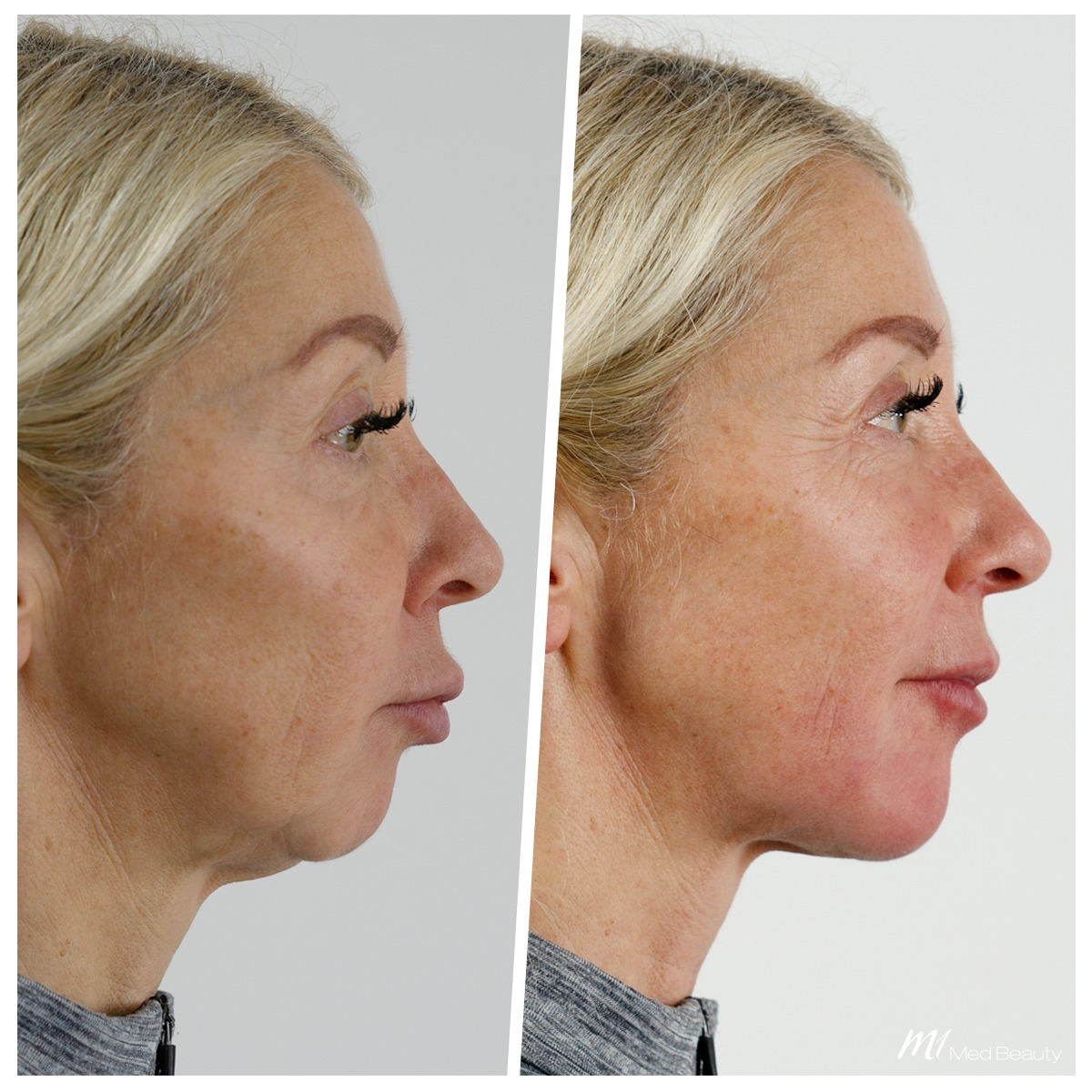 Jawline filler treatment at M1 Med Beauty