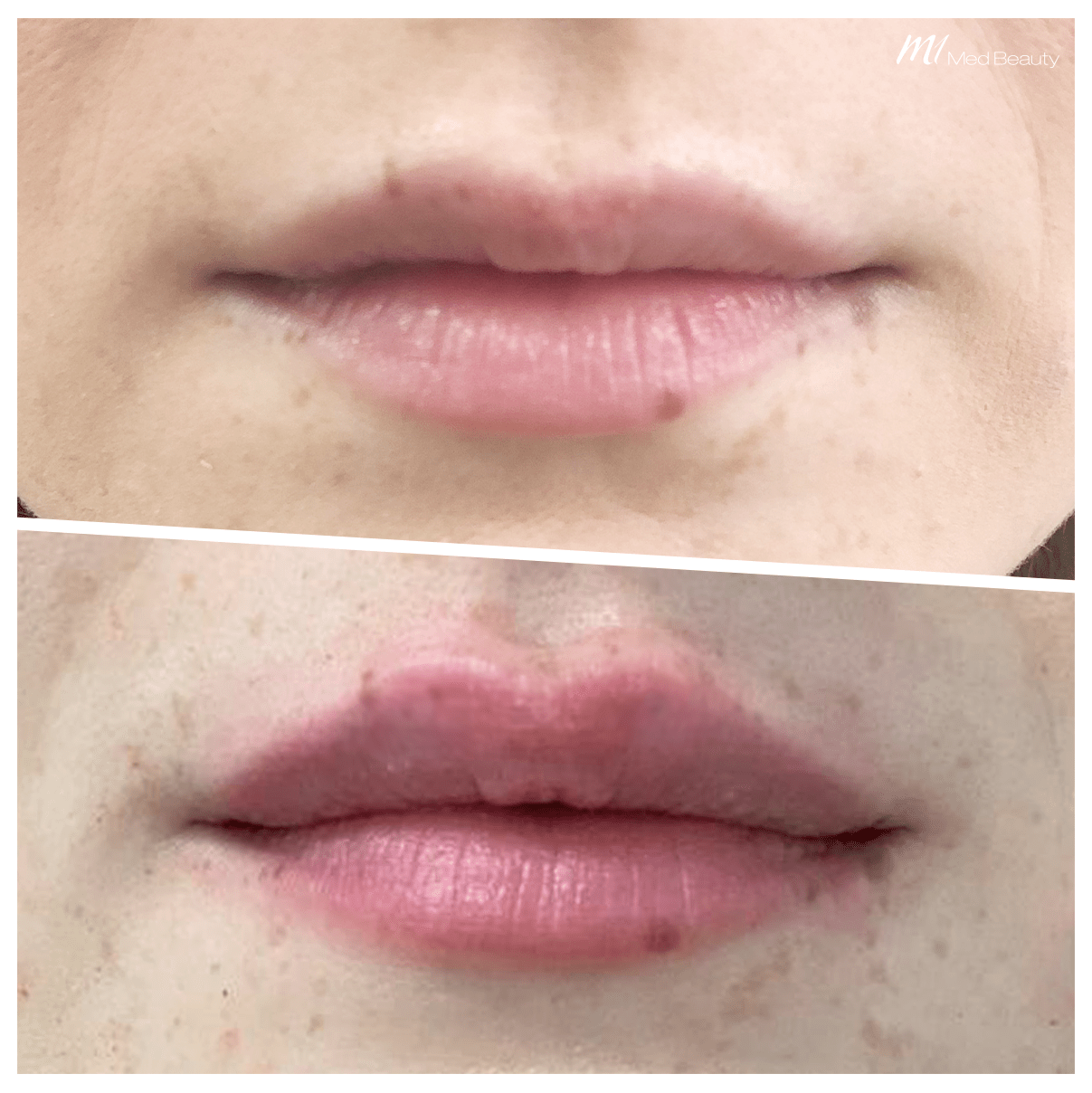 Lip filler treatment at M1 Med Beauty, Lip enhancement with Cosmetic Doctors