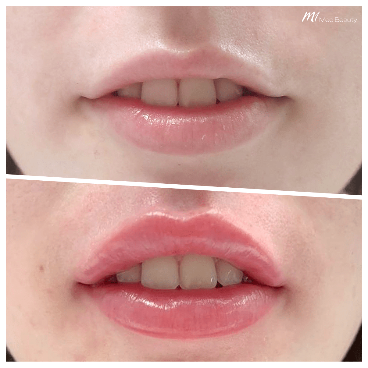 Lip filler treatment at M1 Med Beauty