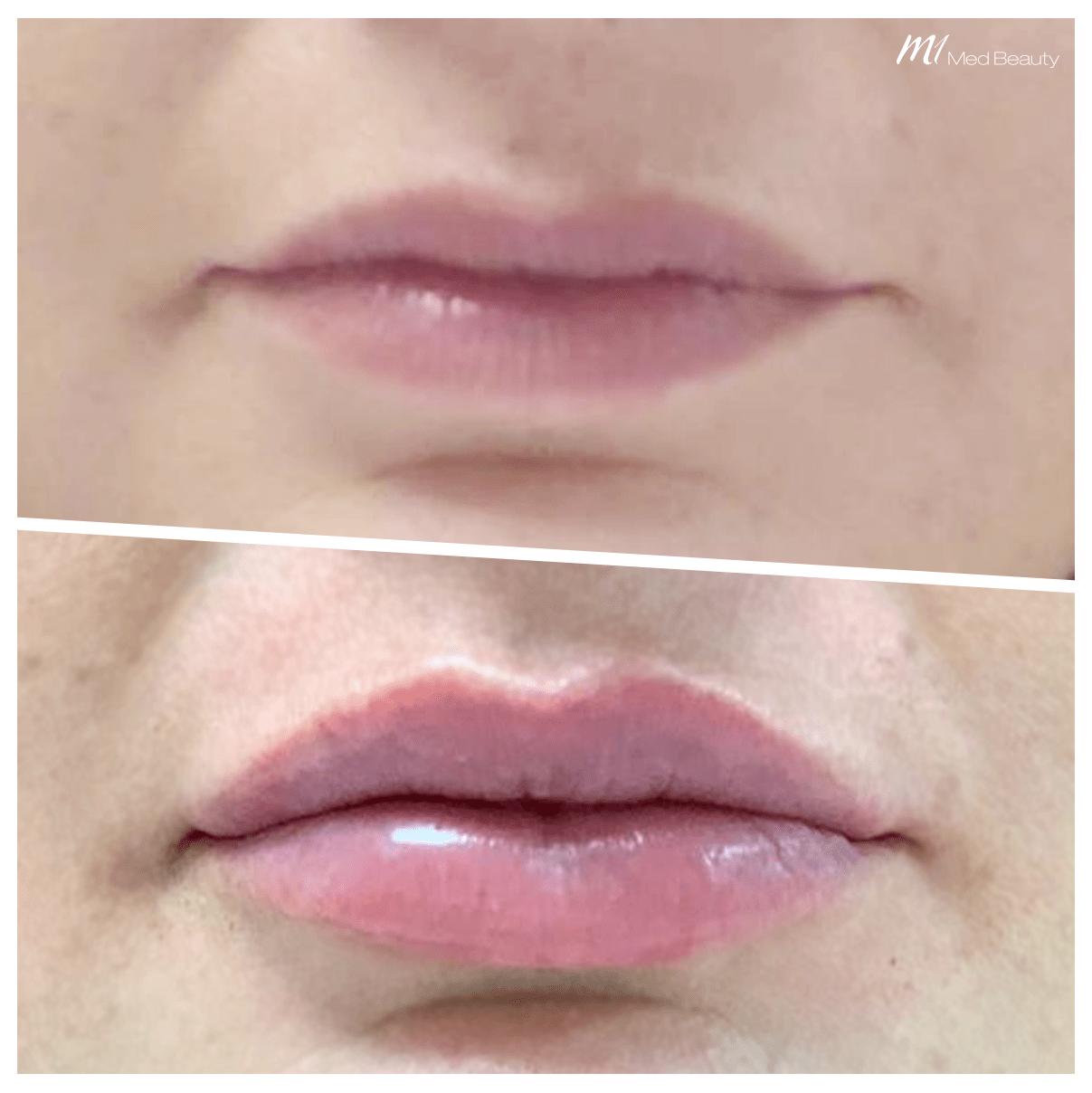 Lip filler treatment at M1 Med Beauty