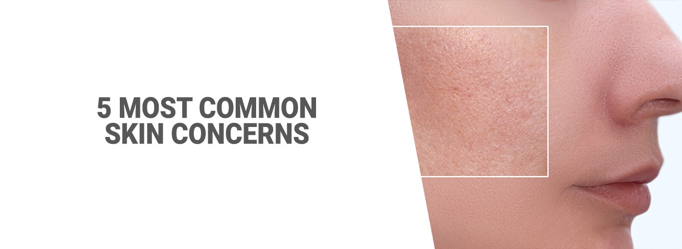 5 Most Common Skin Concerns