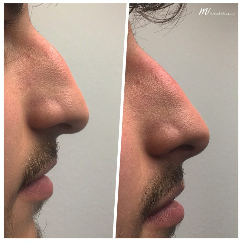 nose correction at M1 Med Beauty
