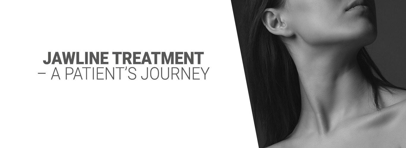 Jawline Treatment – A Patient's Journey