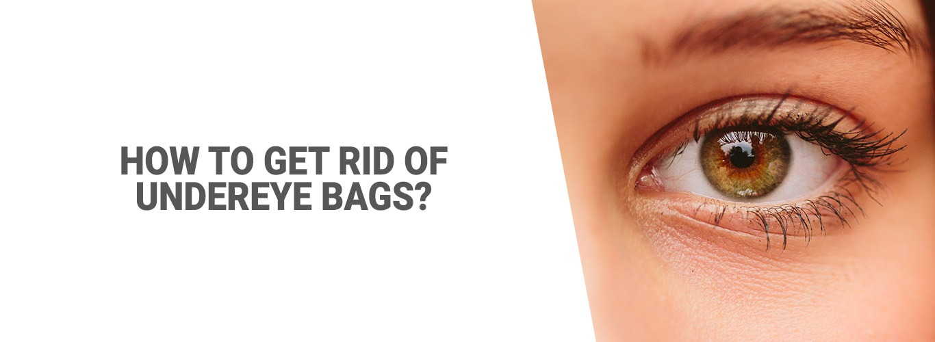 Blogpost:How to get rid of undereye bags?