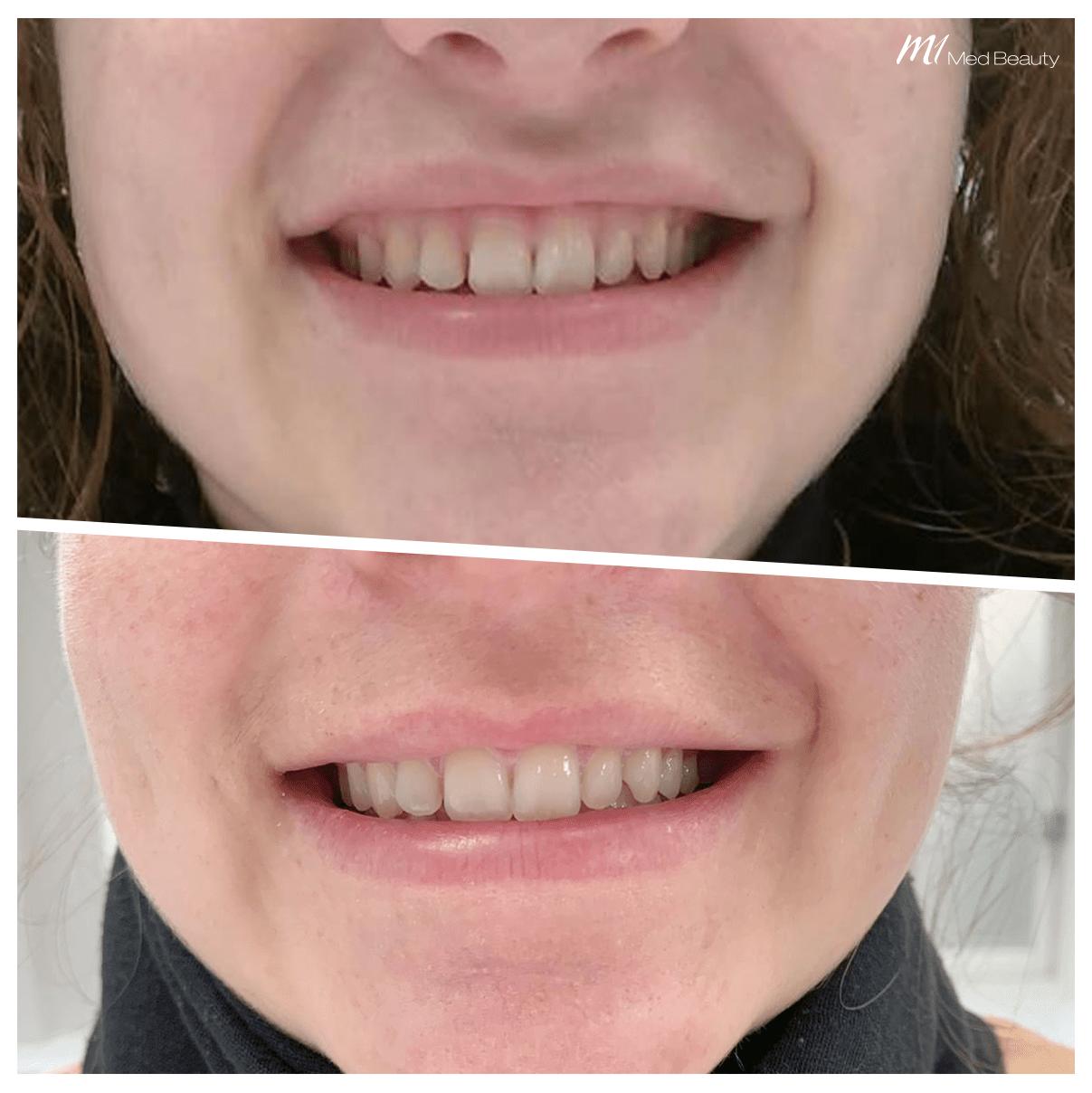 Gummy Smile at M1 Med Beauty