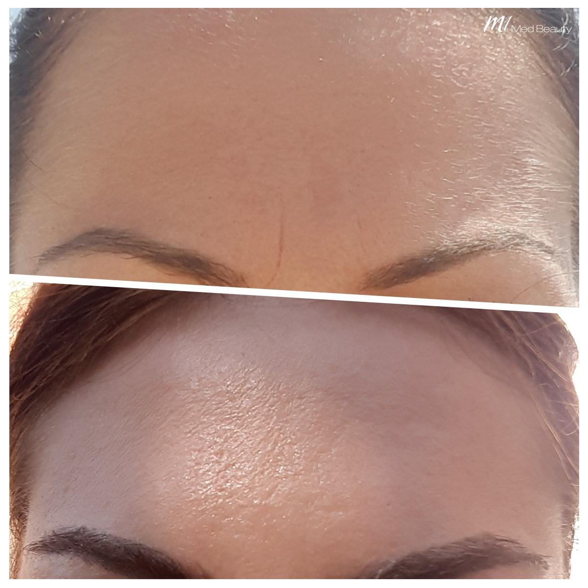 Frown lines treatment with muscle relaxant