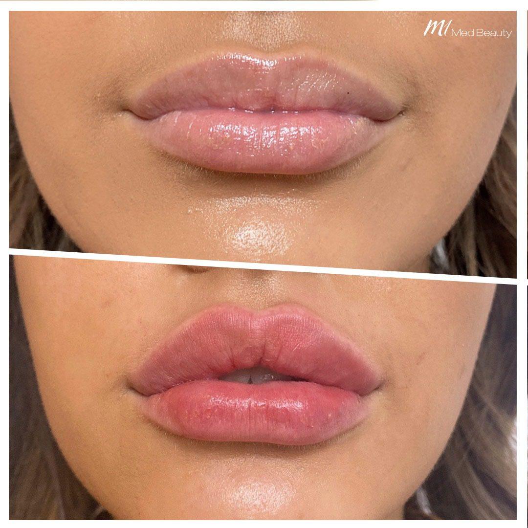 lip filler before after 2