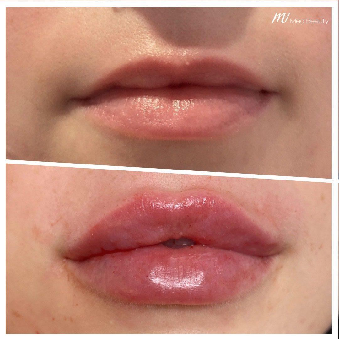 lip filler before after 5