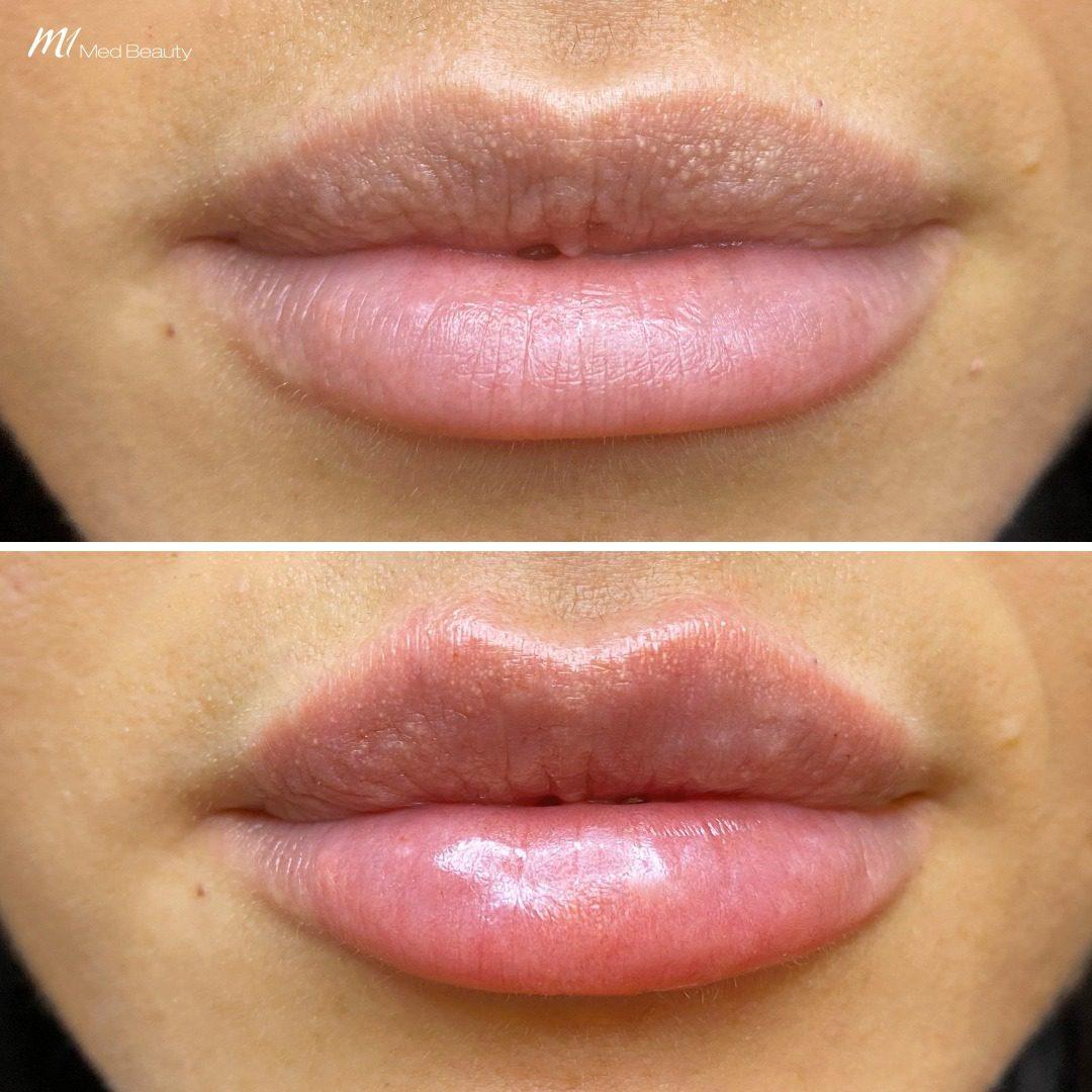 lip filler before after 6