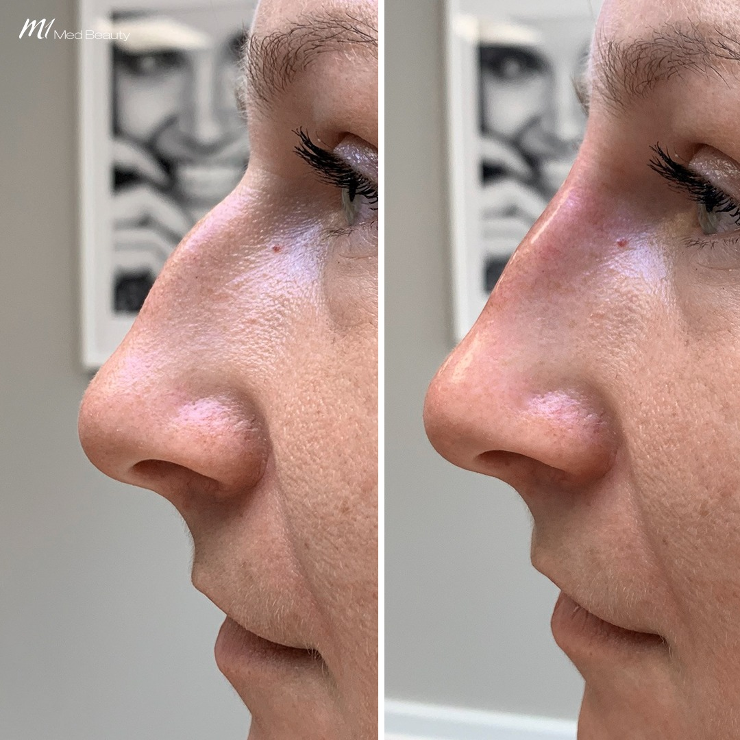 Non-surgical rhinoplasty before after 2