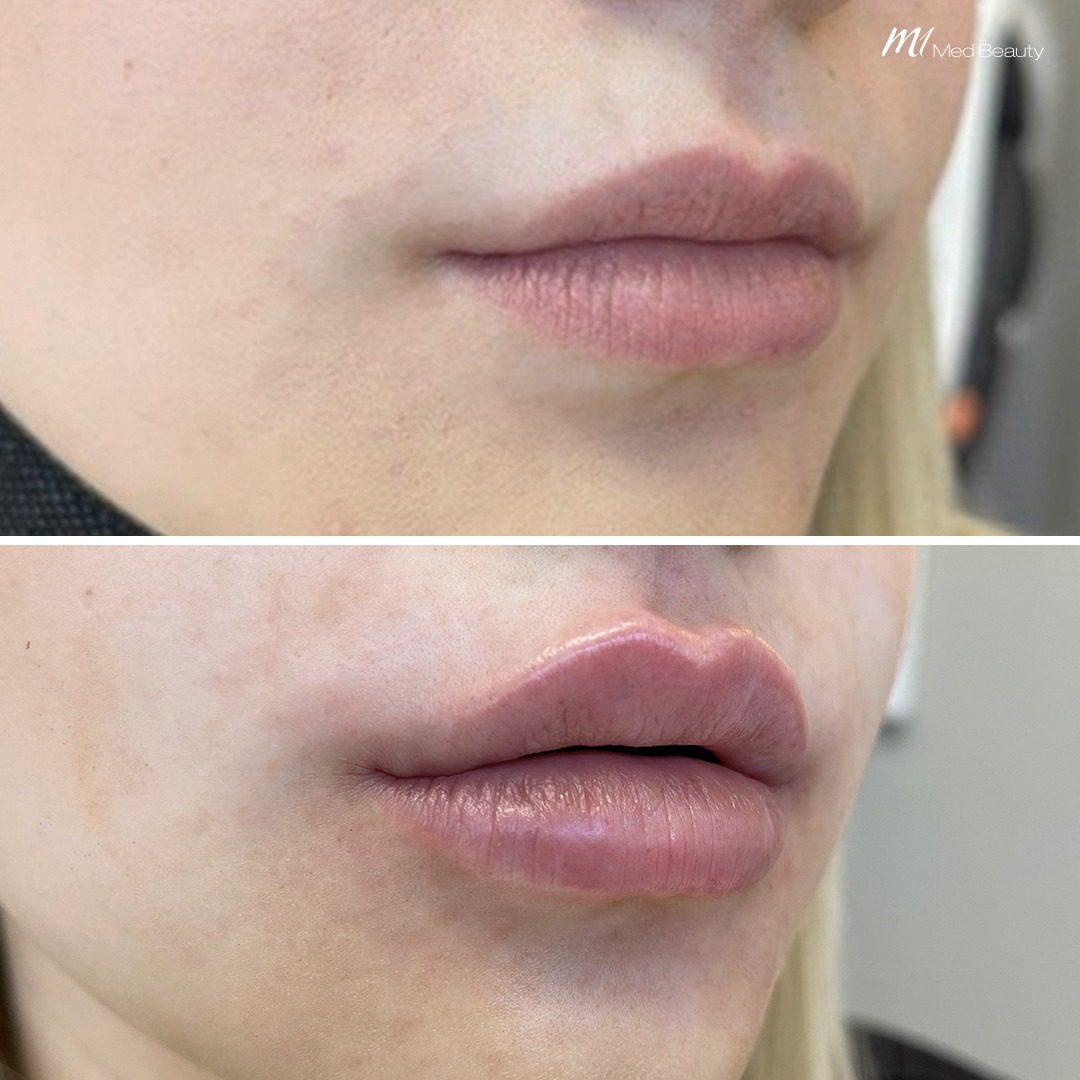 lip filler before after 7