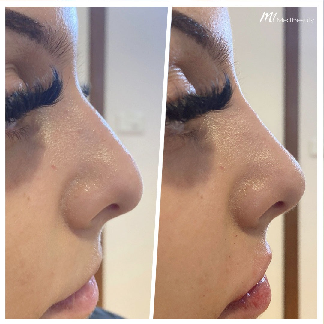 Non-surgical rhinoplasty before after 3