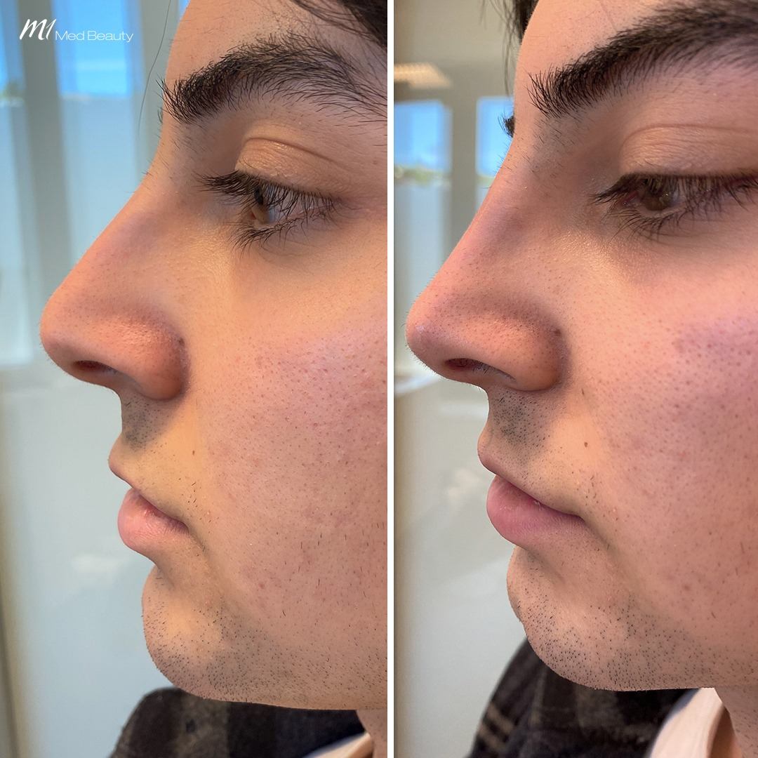 Non-surgical rhinoplasty before after 4