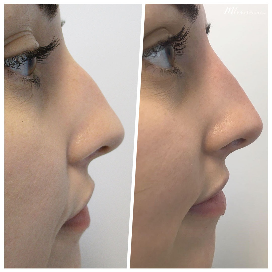 Non-surgical rhinoplasty before after 5