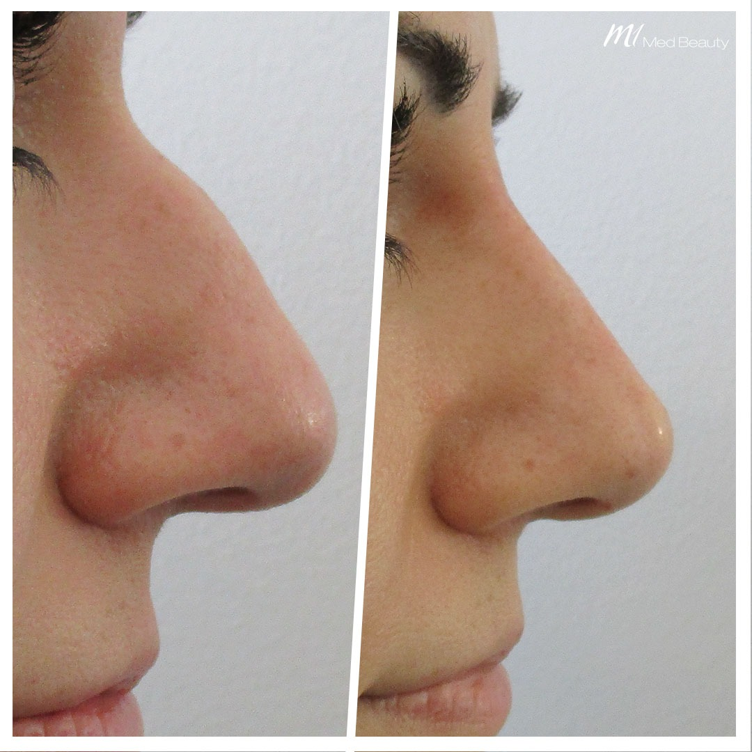 Non-surgical rhinoplasty before after 6