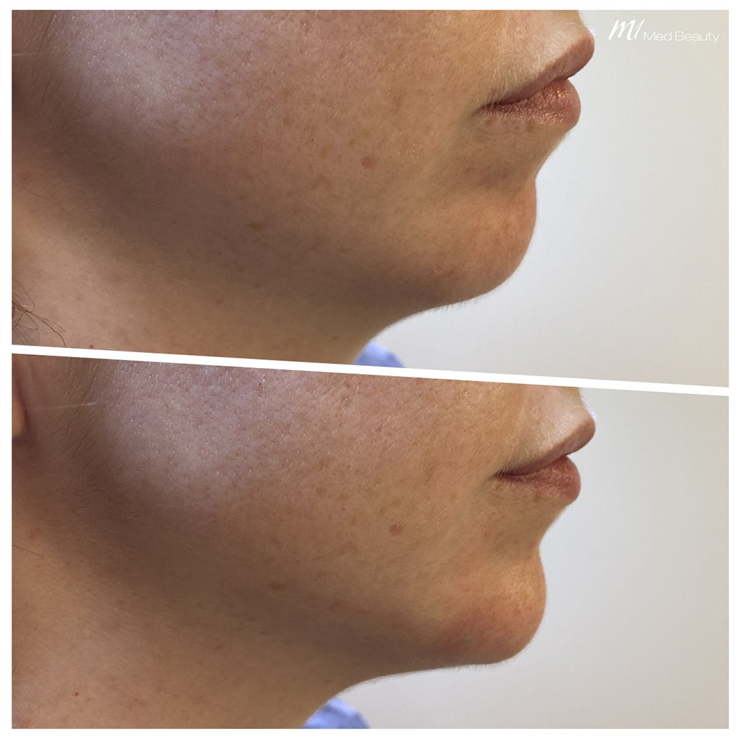 Chin filler before after 3