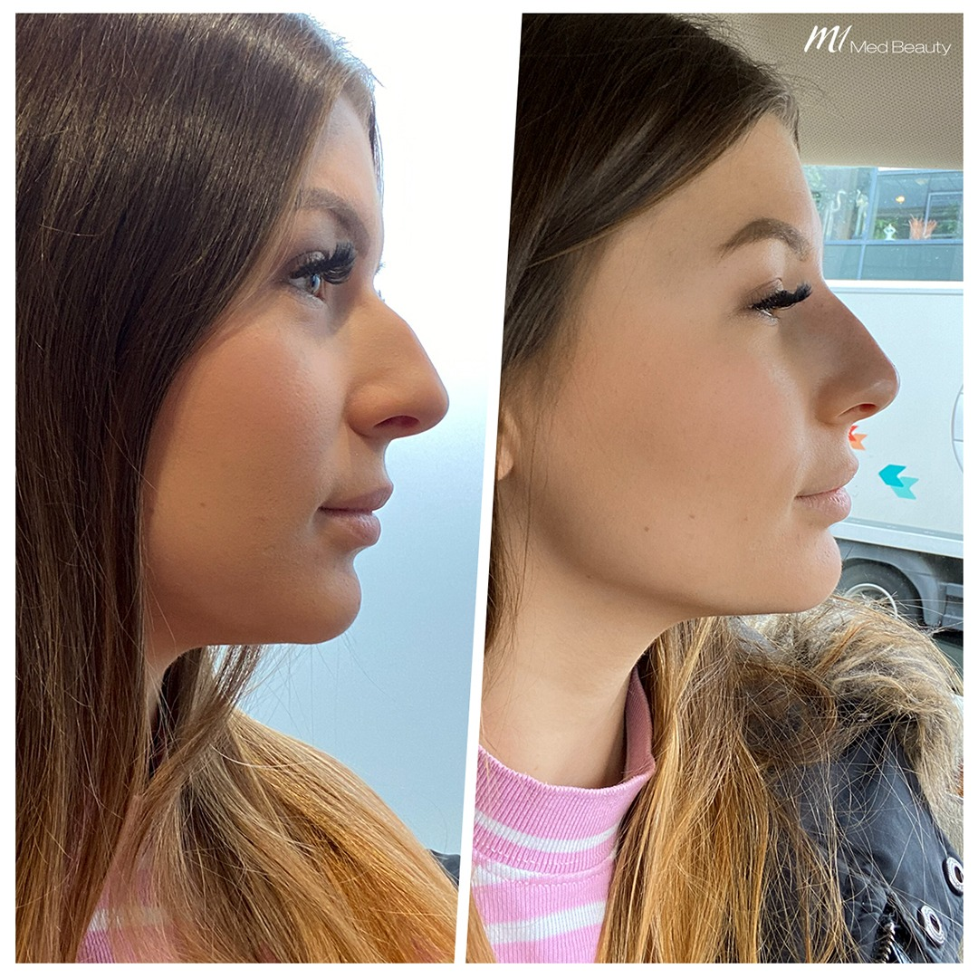 Non-surgical rhinoplasty before after 7