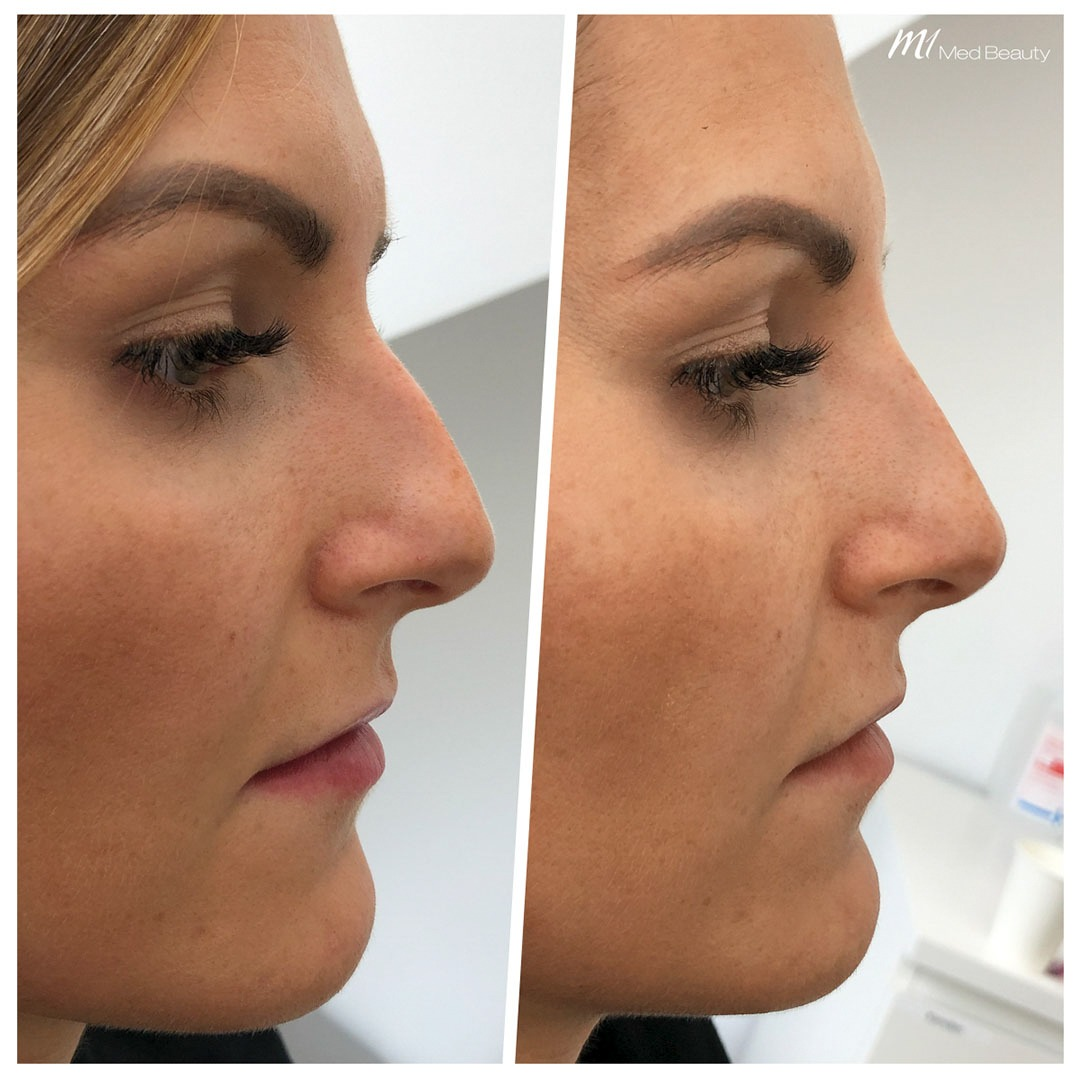 Non-surgical rhinoplasty before after 8