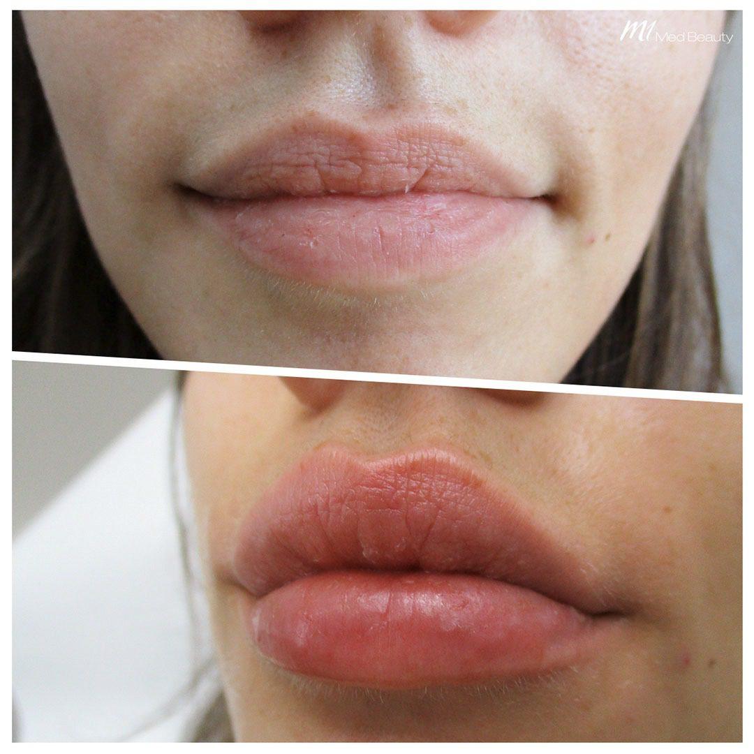 lip filler before after 10