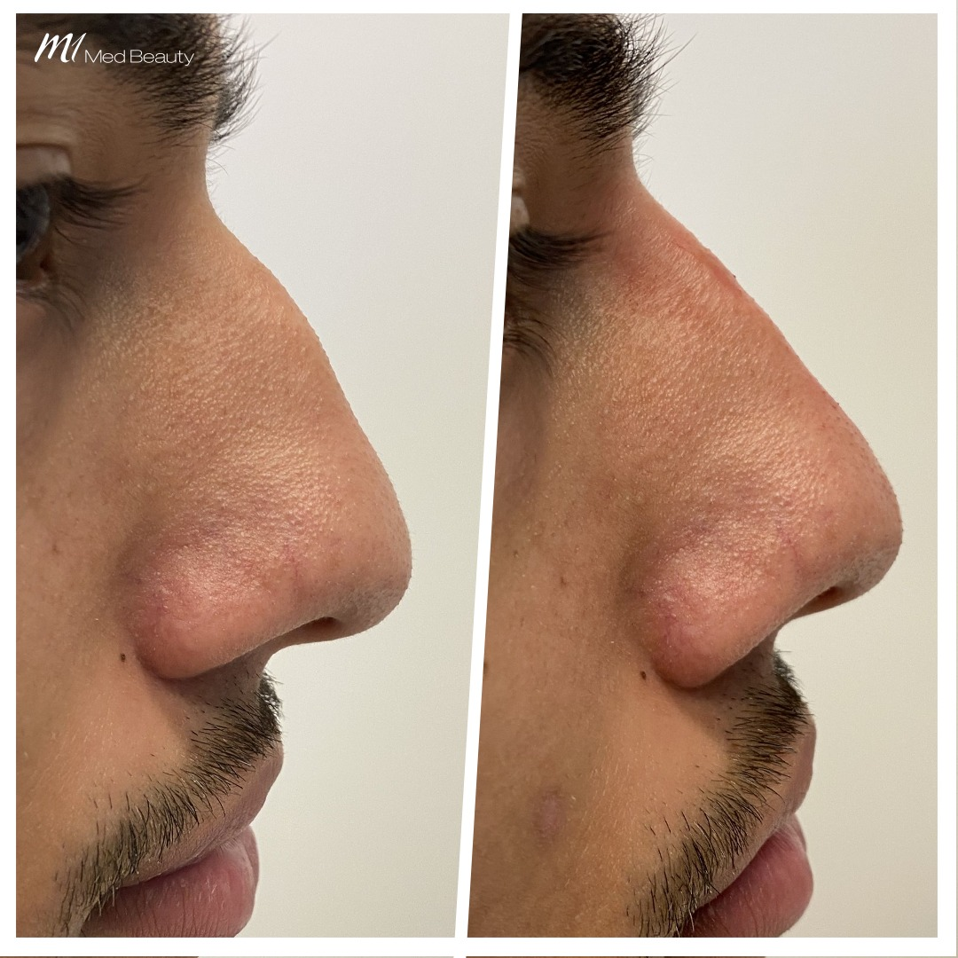 Non-surgical rhinoplasty before after 9