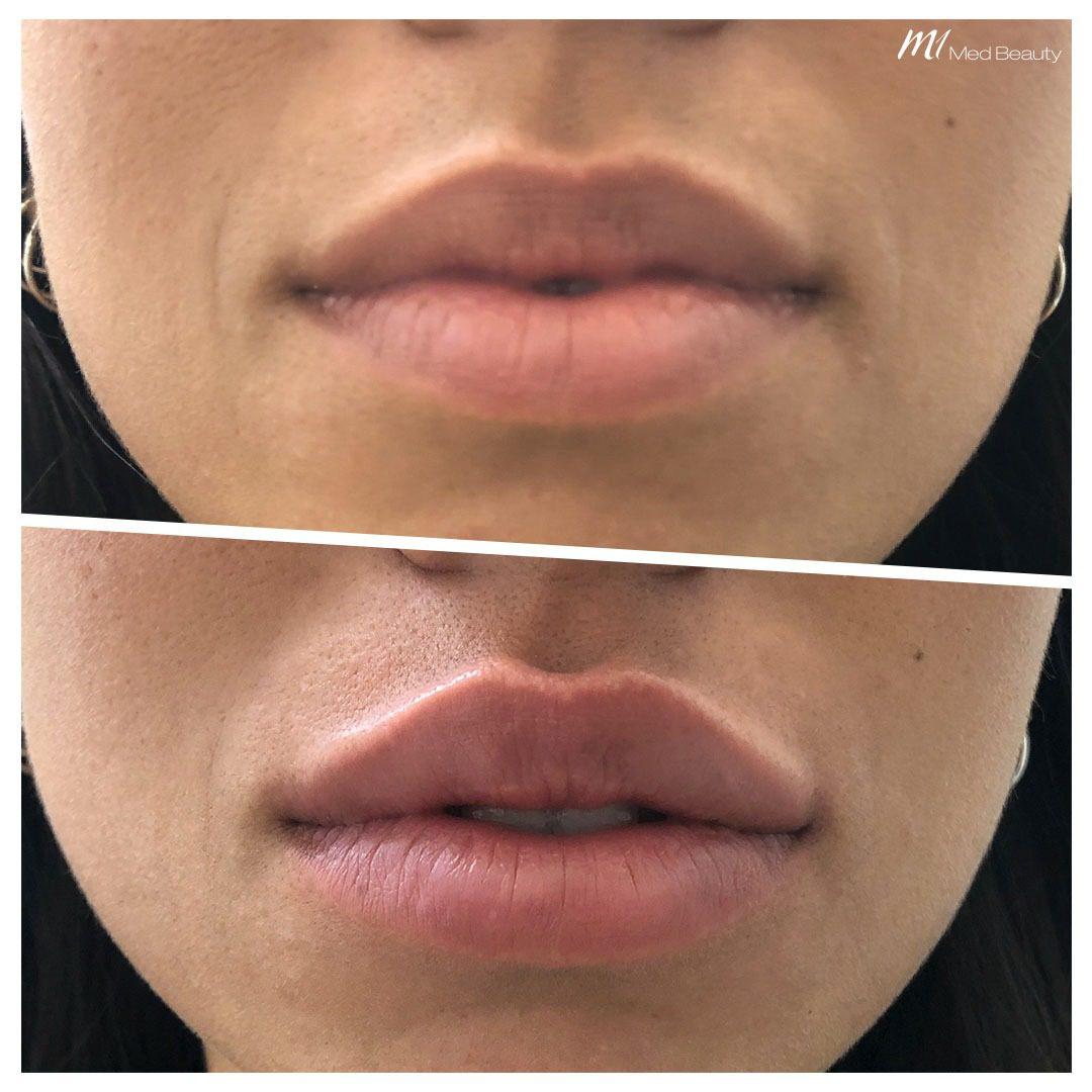 lip filler before after 12