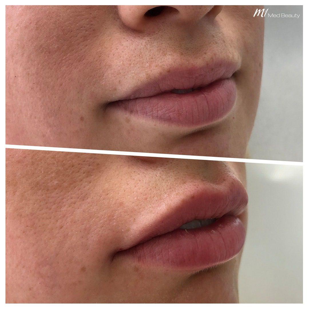 lip filler before after 13
