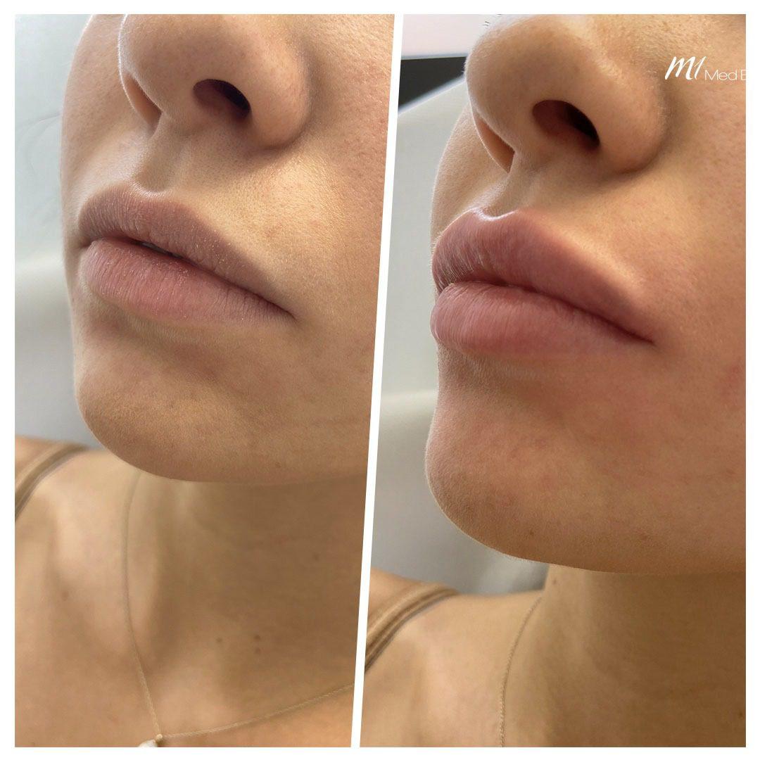 lip filler before after 14