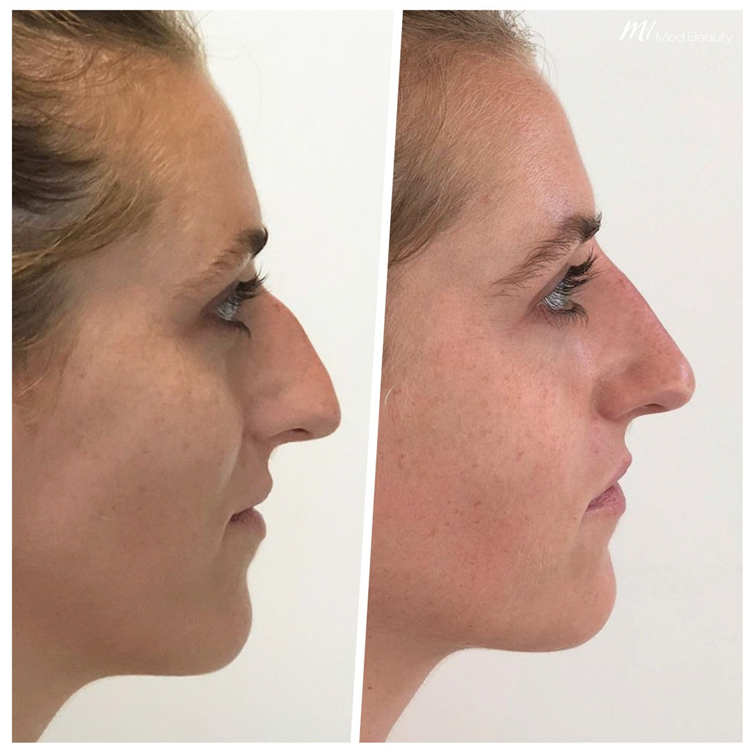 Non-surgical rhinoplasty before after 1