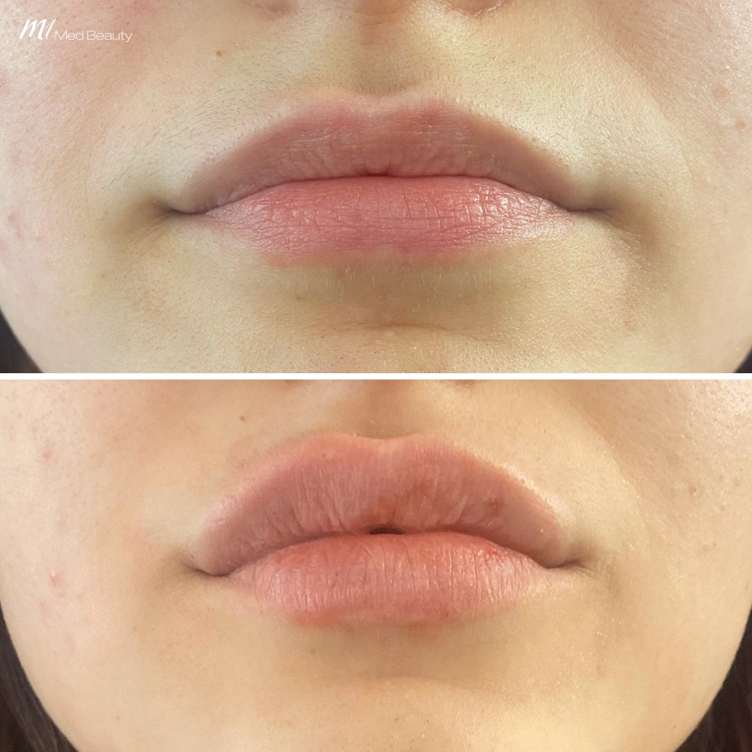 lip filler before after 9