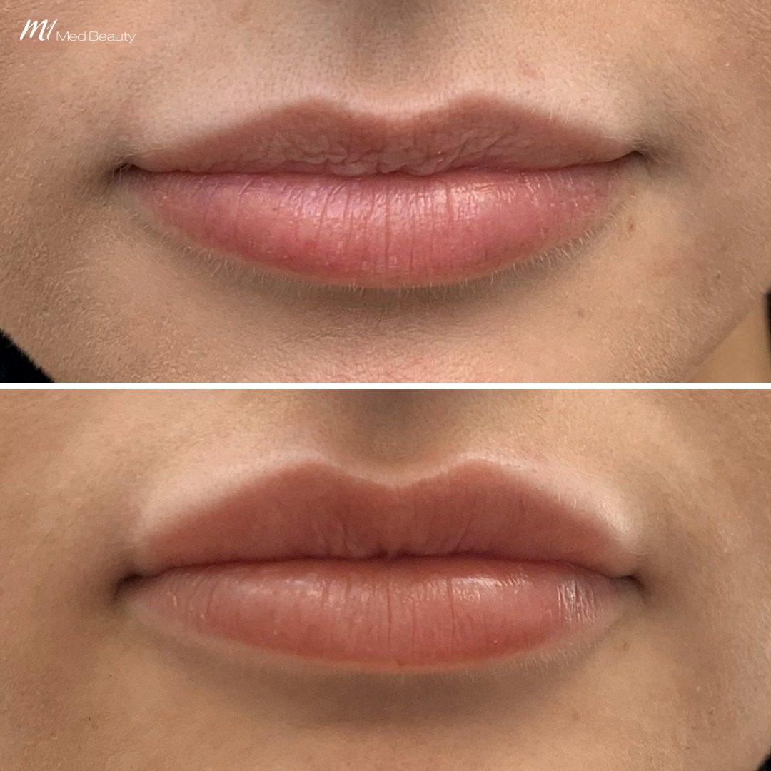 lip filler before after 1