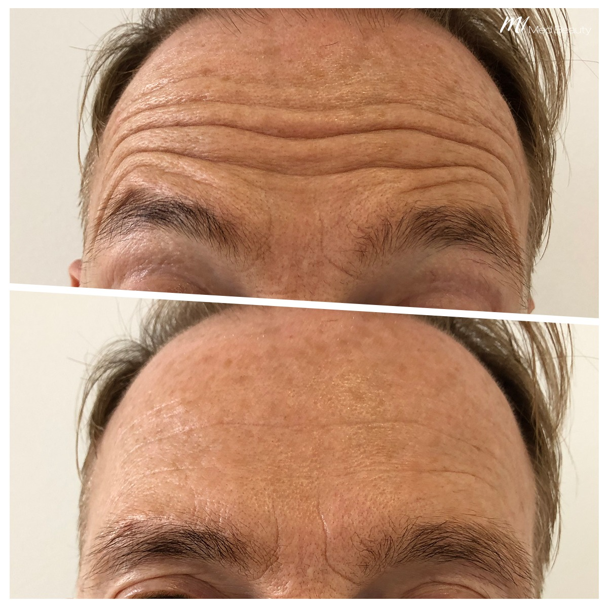 Forehead Lines before after